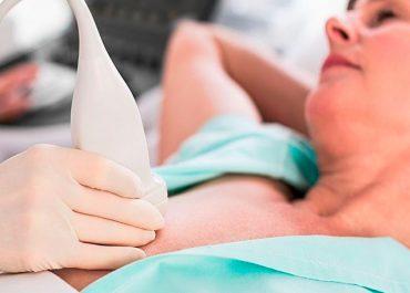 Conheça quais são os procedimentos invasivos da biópsia da mama